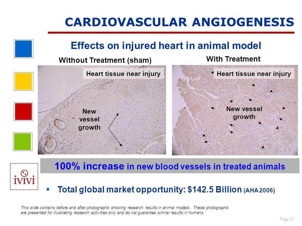 Page 21 CARDIOVASCULAR ANGIOGENESIS Effects on injured heart in animal model Total global market opportunity: $142.5 Billion (AHA 2006) With Treatment