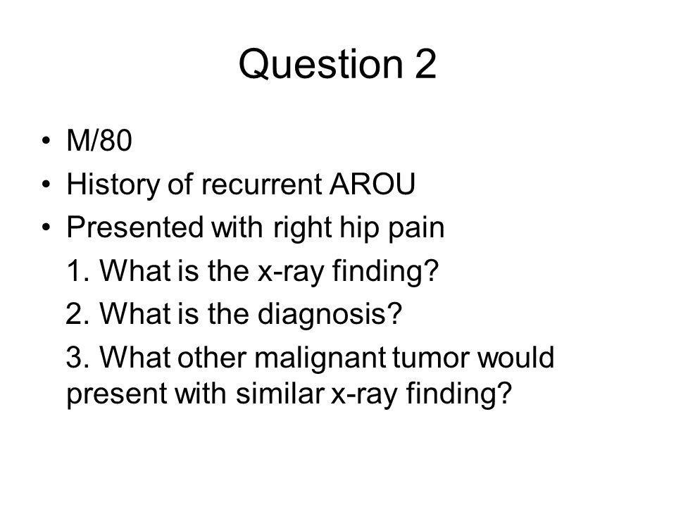 Question 4 20-year-old man presented with recurrent episodes of palpitation.