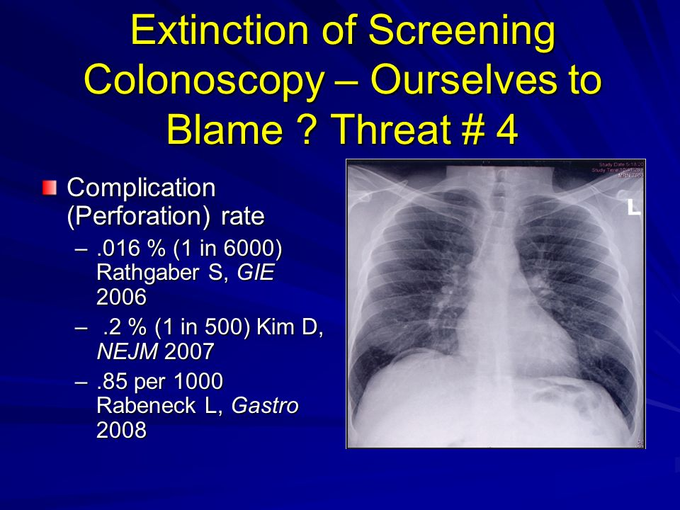 Extinction of Screening Colonoscopy – Ourselves to Blame ? Threat # 4 Complication (Perforation) rate –.016 % (1 in 6000) Rathgaber S, GIE 2006 –.2 %