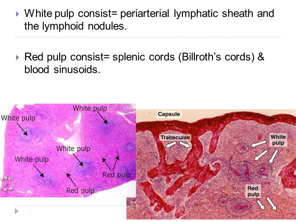 White pulp consist= periarterial lymphatic sheath and the lymphoid nodules. Red pulp consist= splenic cords (Billroths cords) & blood sinusoids.
