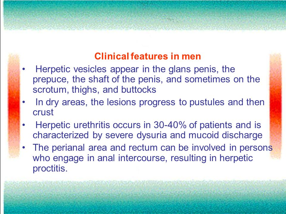 Clinical features in men Herpetic vesicles appear in the glans penis, the prepuce, the shaft of the penis, and sometimes on the scrotum, thighs, and b