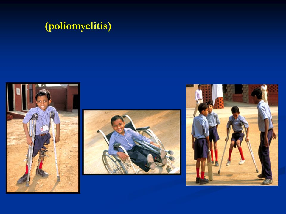 (poliomyelitis)