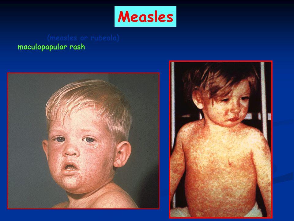 Measles (measles or rubeola) maculopapular rash