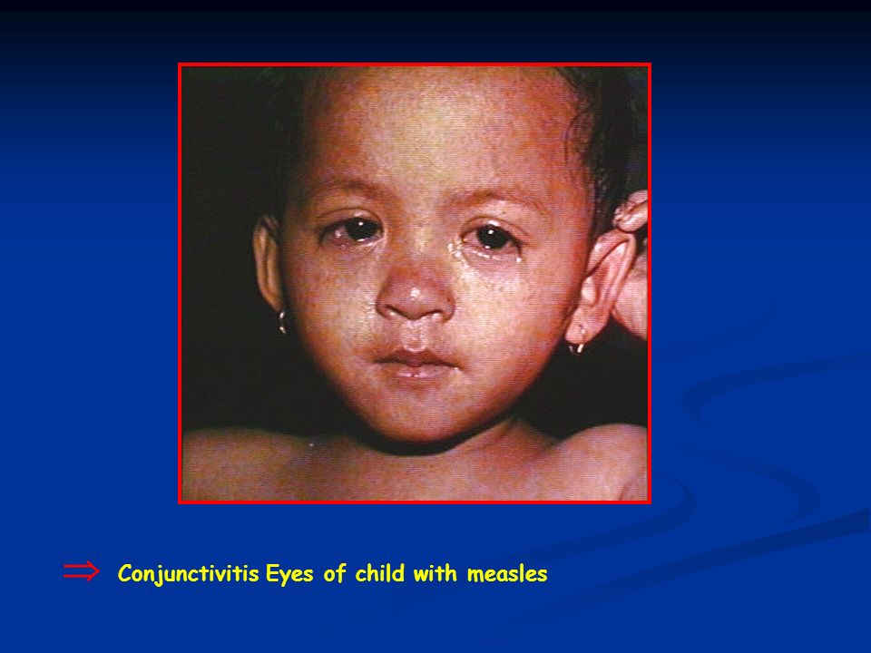 Conjunctivitis Eyes of child with measles