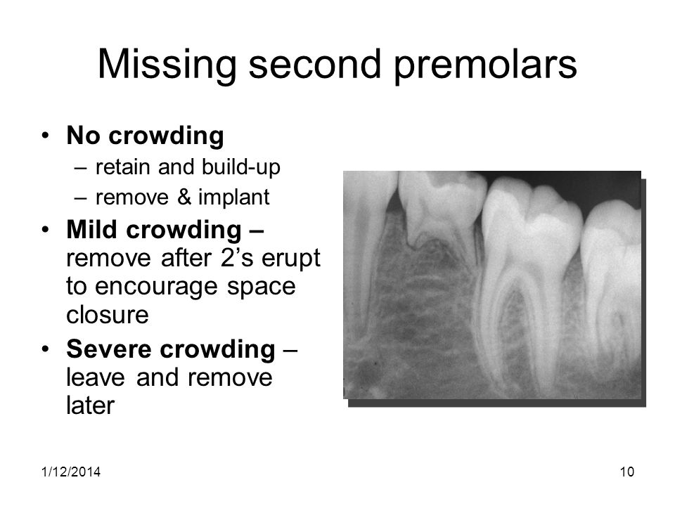 10 Missing second premolars No crowding –retain and build-up –remove & implant Mild crowding – remove after 2s erupt to encourage space closure Severe