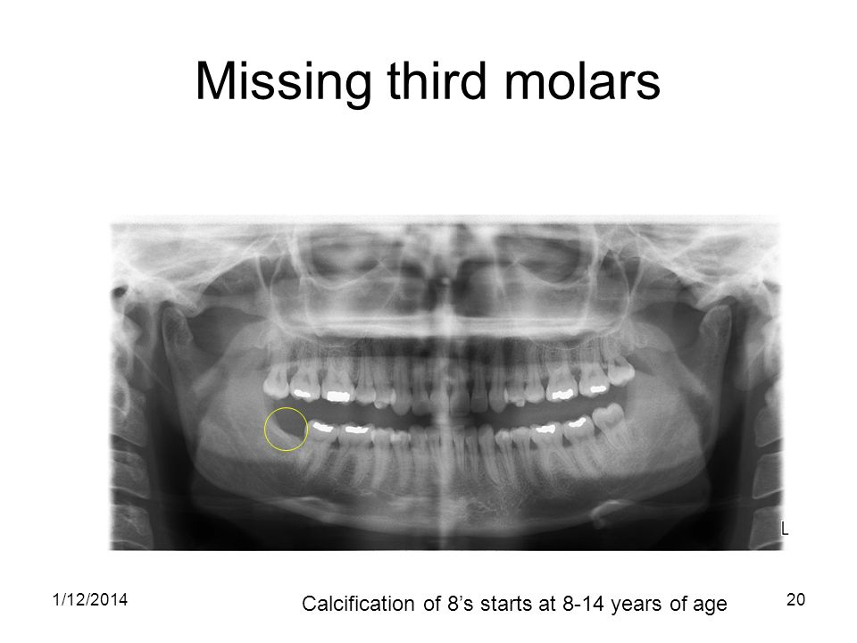 20 Missing third molars Calcification of 8s starts at 8-14 years of age 1/12/2014