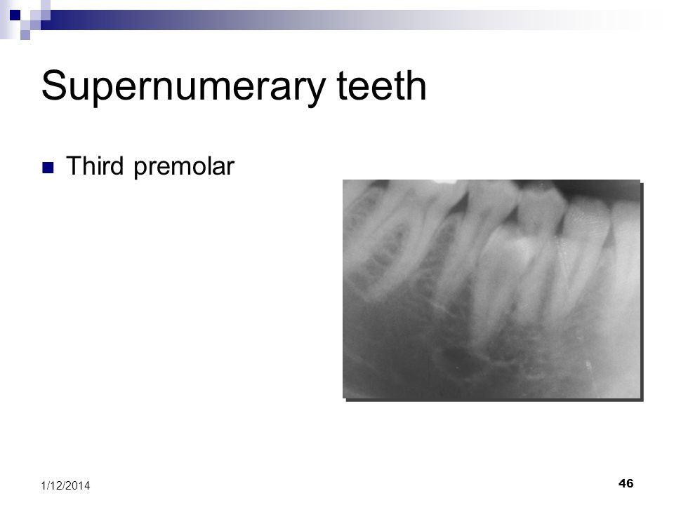 46 Supernumerary teeth Third premolar 1/12/2014