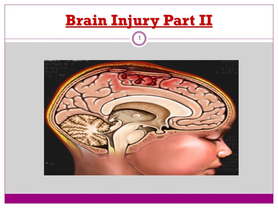 Brain Injury Part II 1
