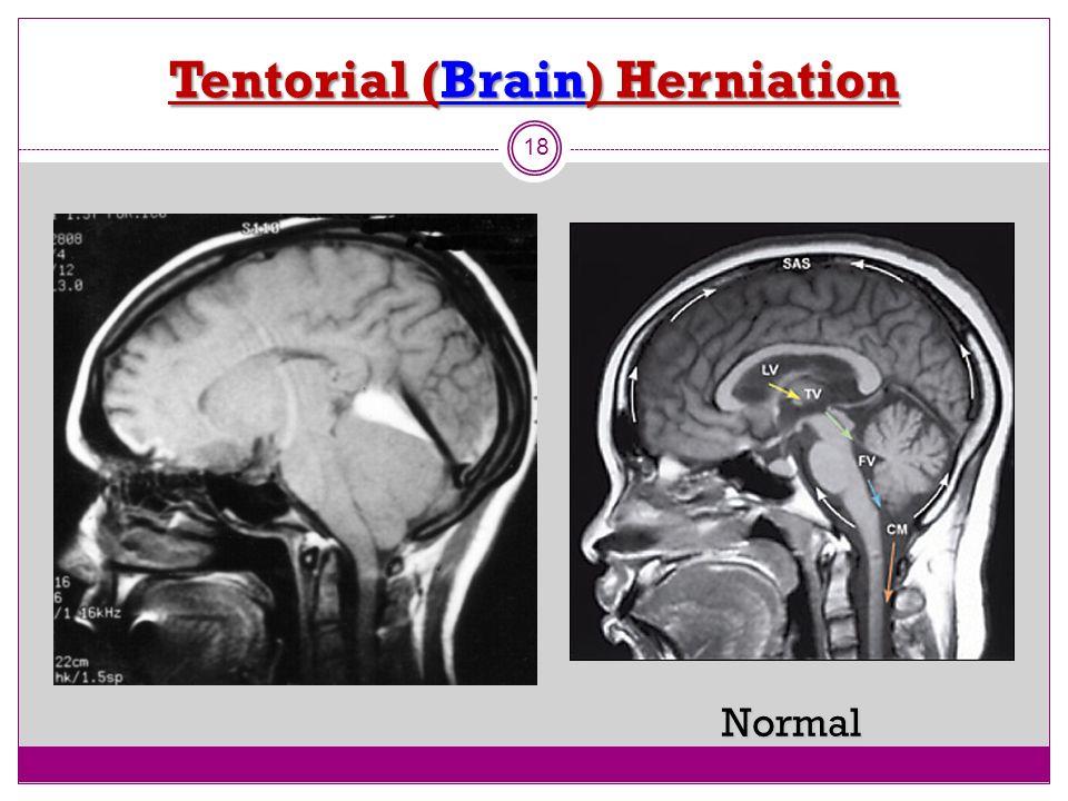 Tentorial (Brain) Herniation 18 Normal
