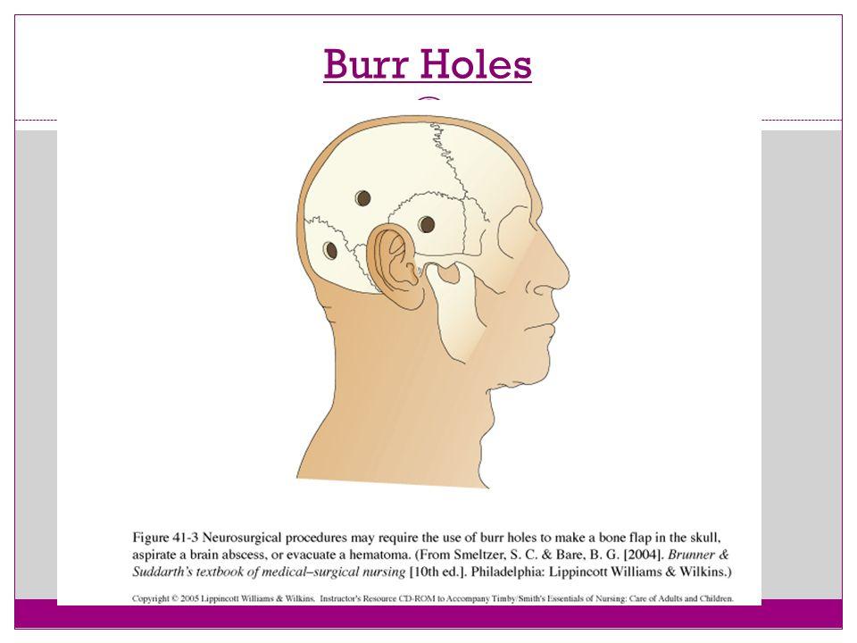 Burr Holes 29