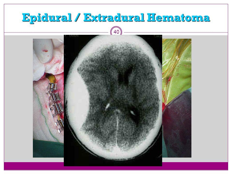 Epidural / Extradural Hematoma 40