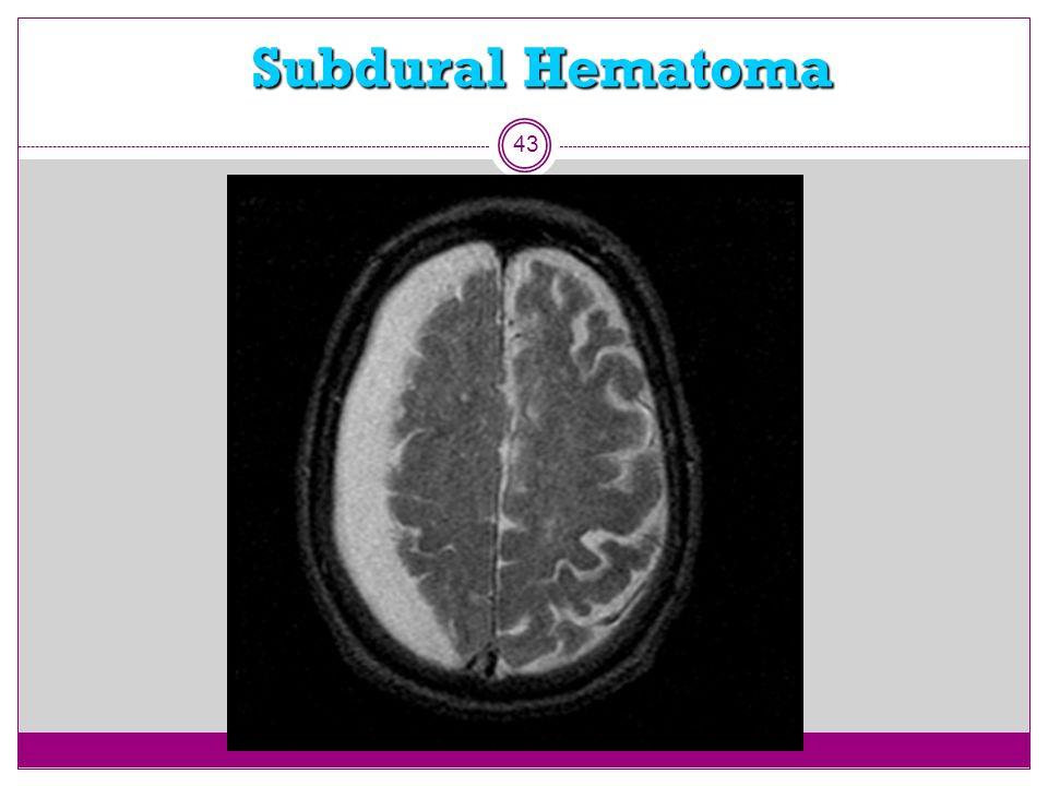 Subdural Hematoma 43