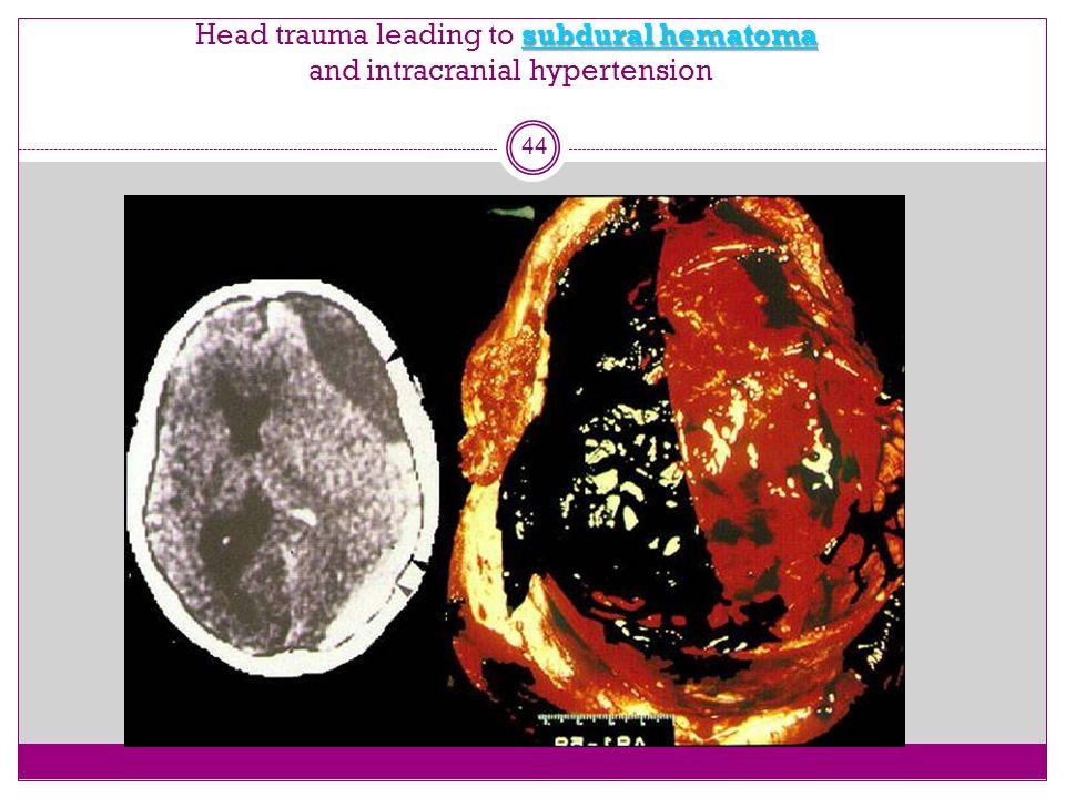 subdural hematoma Head trauma leading to subdural hematoma and intracranial hypertension 44