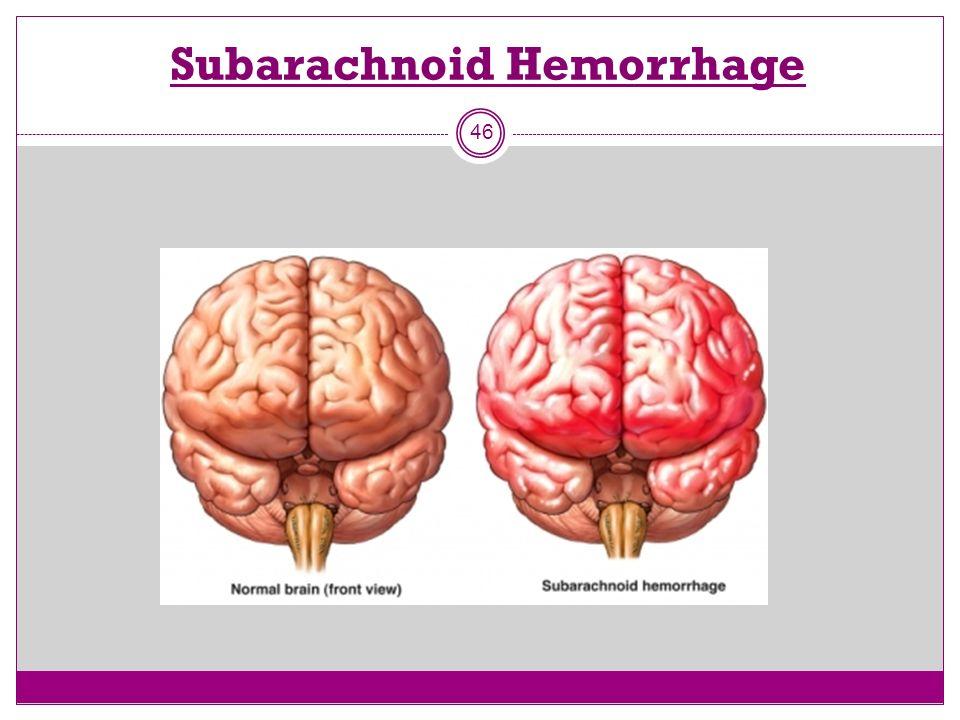 Subarachnoid Hemorrhage 46