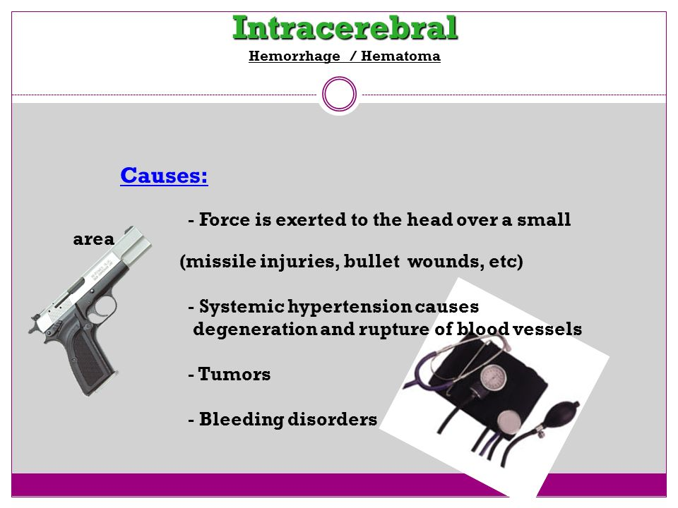 Intracerebral Intracerebral Hemorrhage / Hematoma Causes: - Force is exerted to the head over a small area (missile injuries, bullet wounds, etc) - Sy