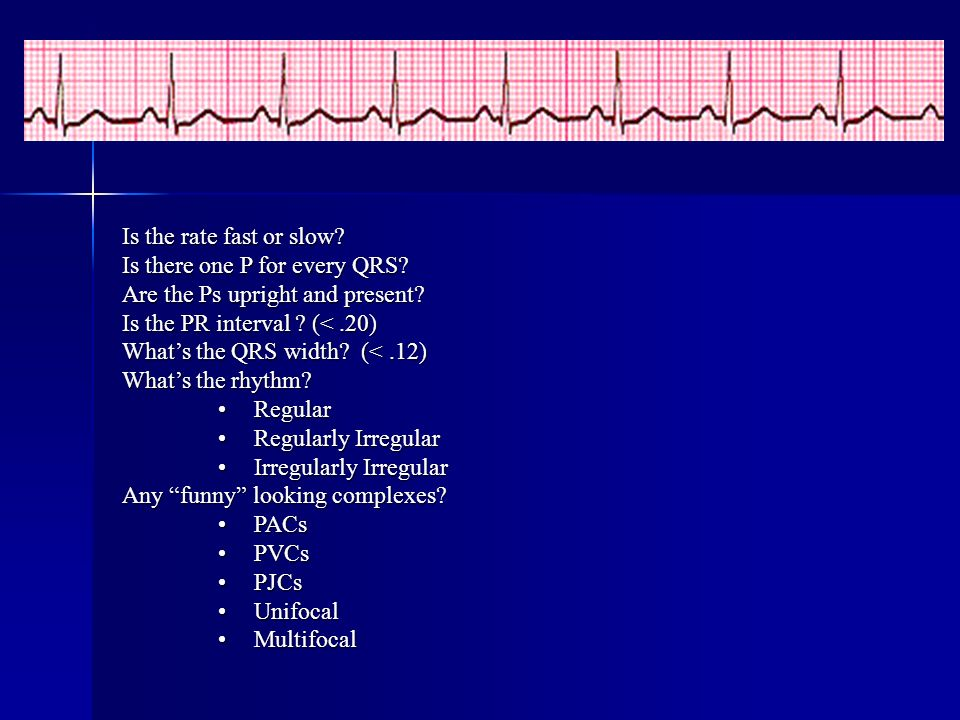 Is the rate fast or slow? Is there one P for every QRS? Are the Ps upright and present? Is the PR interval ? (<.20) Whats the QRS width? (<.12) Whats