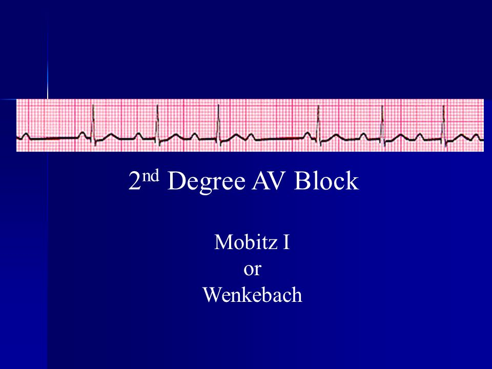 2 nd Degree AV Block Mobitz I or Wenkebach