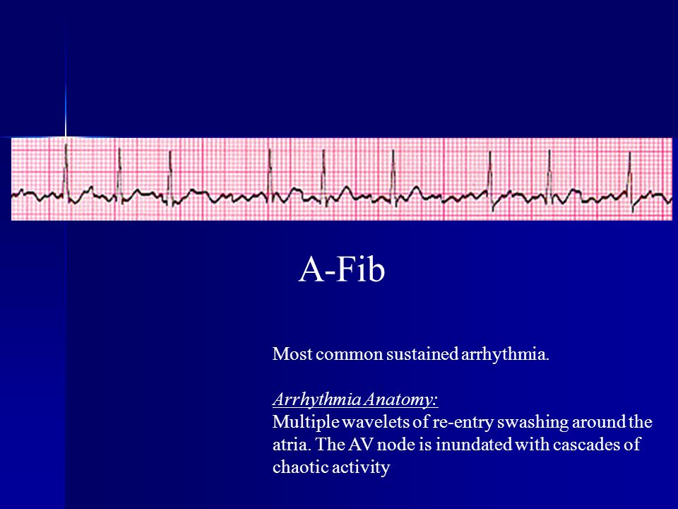 A-Fib Most common sustained arrhythmia. Arrhythmia Anatomy: Multiple wavelets of re-entry swashing around the atria. The AV node is inundated with cas
