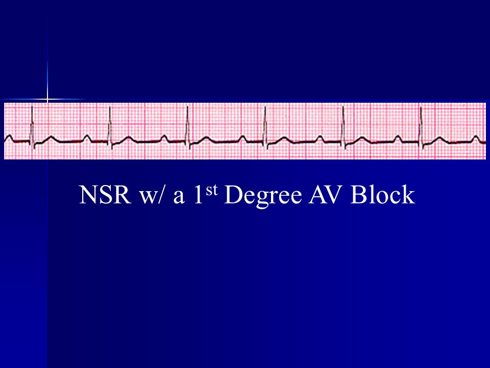 NSR w/ a 1 st Degree AV Block