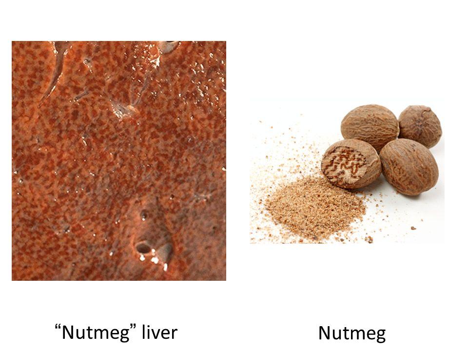 Nutmeg liver Nutmeg