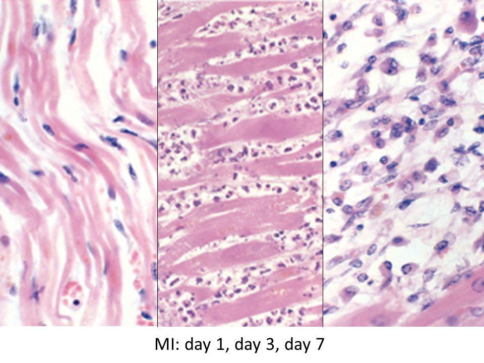 MI: day 1, day 3, day 7