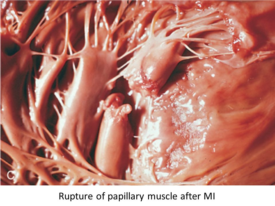 Rupture of papillary muscle after MI