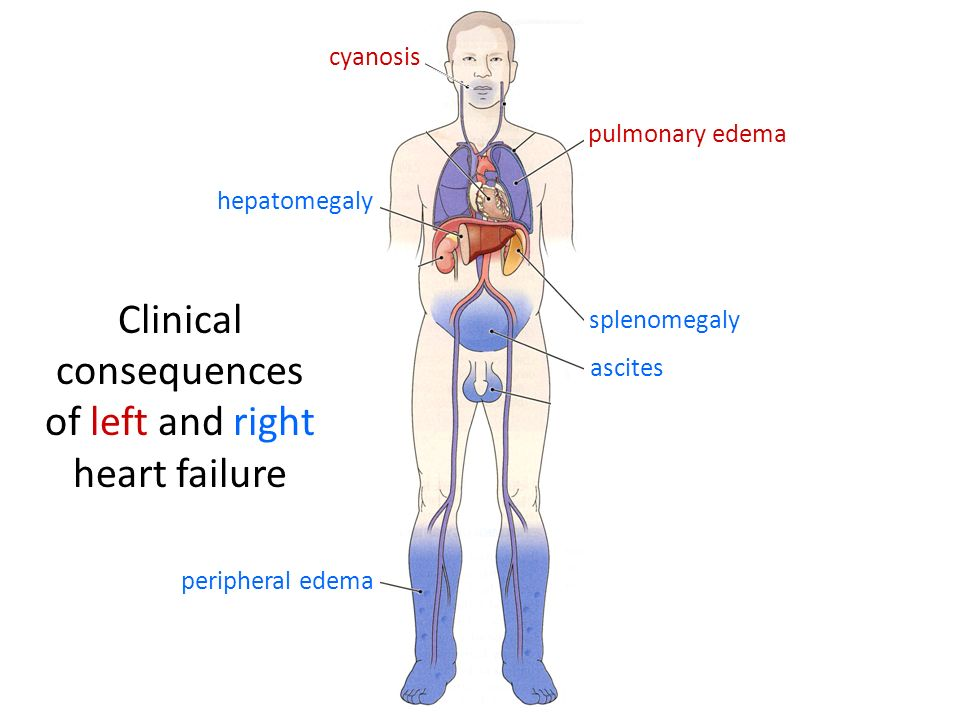 Clinical consequences of left and right heart failure peripheral edema ascites hepatomegaly cyanosis pulmonary edema splenomegaly