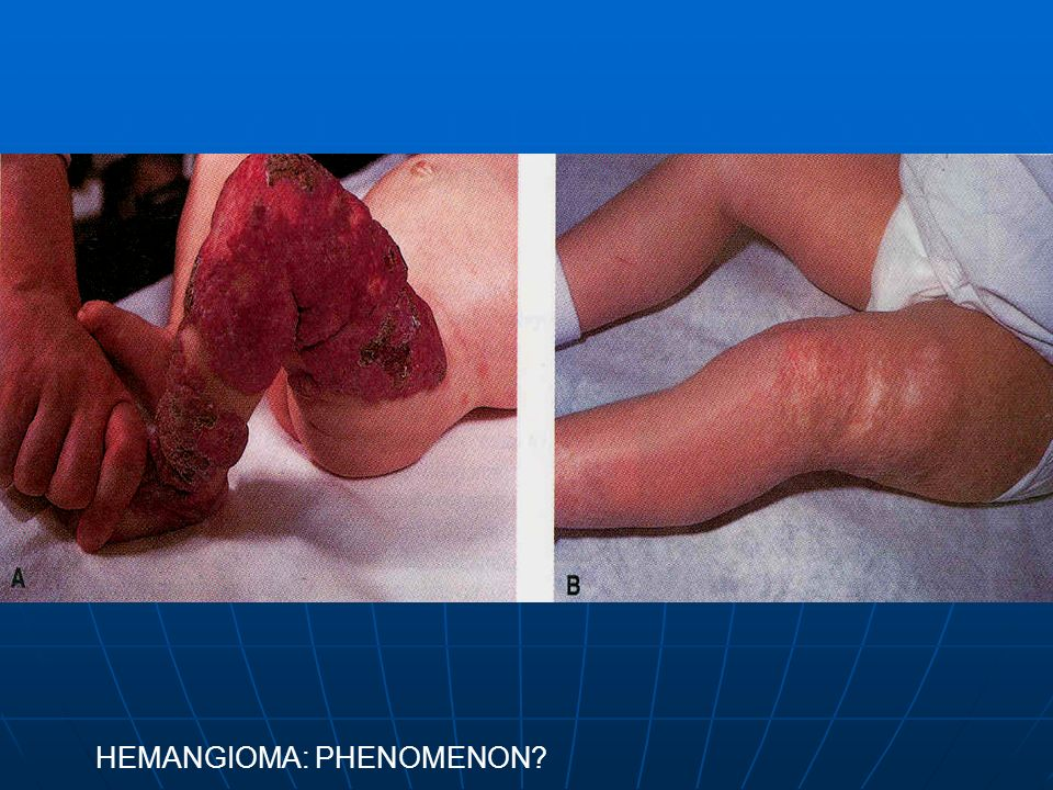 HEMANGIOMA: PHENOMENON
