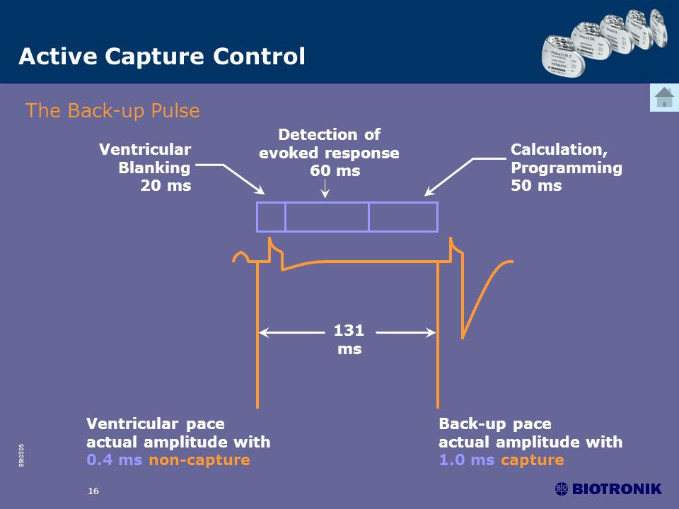 SSt0305 16 Active Capture Control The Back-up Pulse Ventricular pace actual amplitude with 0.4 ms non-capture Back-up pace actual amplitude with 1.0 m