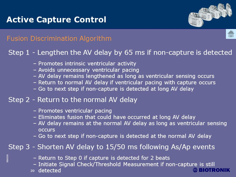 SSt0305 20 Active Capture Control Fusion Discrimination Algorithm Step 1 - Lengthen the AV delay by 65 ms if non-capture is detected –Promotes intrins
