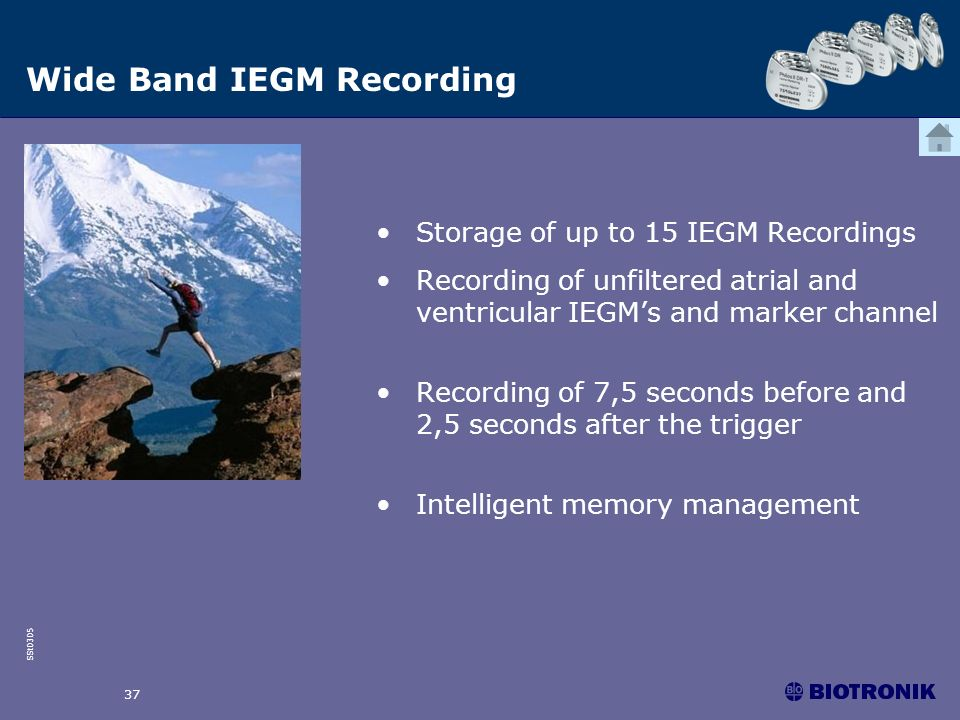 SSt0305 37 Wide Band IEGM Recording Storage of up to 15 IEGM Recordings Recording of unfiltered atrial and ventricular IEGMs and marker channel Record