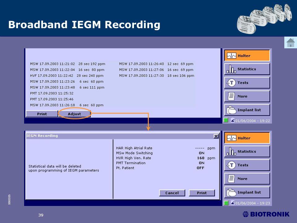 SSt0305 39 Broadband IEGM Recording