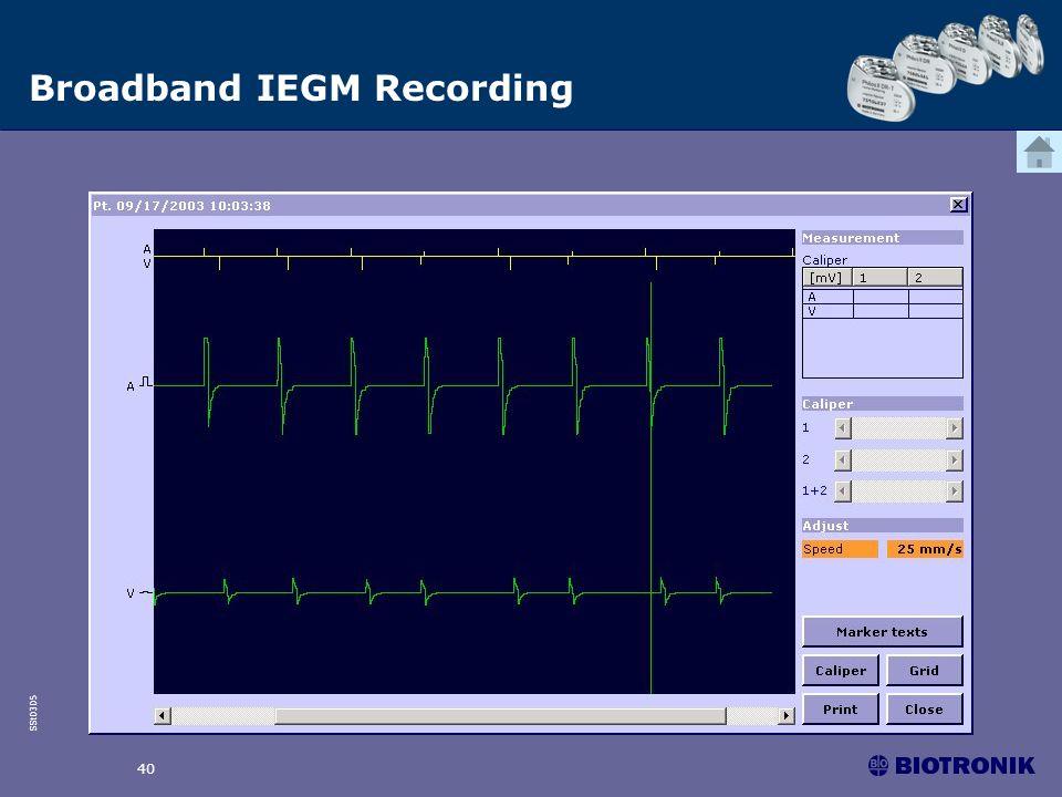 SSt0305 40 Broadband IEGM Recording