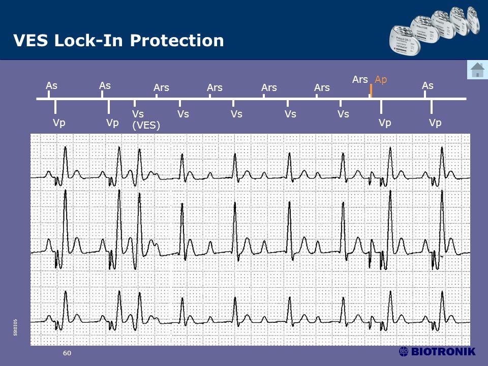 SSt0305 60 Vs (VES) Ars Ars Ap Vp As Vp As Vs Ars Vs Ars Vs Ars Vs Vp As VES Lock-In Protection