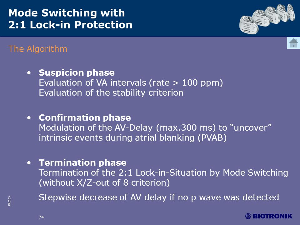 SSt0305 74 Mode Switching with 2:1 Lock-in Protection The Algorithm Suspicion phase Evaluation of VA intervals (rate > 100 ppm) Evaluation of the stab