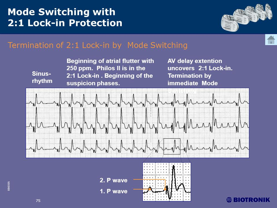 SSt0305 75 Mode Switching with 2:1 Lock-in Protection Termination of 2:1 Lock-in by Mode Switching Sinus- rhythm Beginning of atrial flutter with 250
