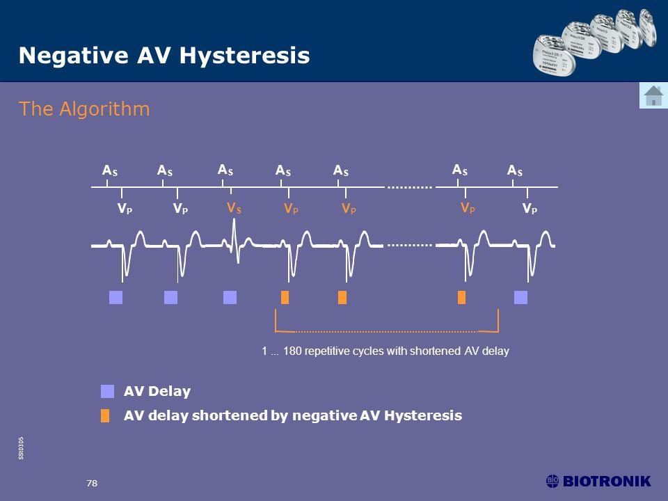 SSt0305 78 Negative AV Hysteresis AV Delay AV delay shortened by negative AV Hysteresis 1... 180 repetitive cycles with shortened AV delay ASAS ASAS V