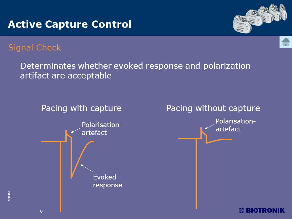 SSt0305 8 Pacing without capturePacing with capture Evoked response Signal Check Polarisation- artefact Determinates whether evoked response and polar