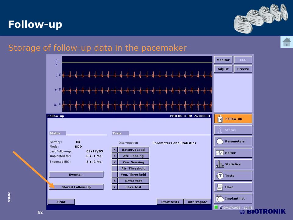 SSt0305 82 Follow-up Storage of follow-up data in the pacemaker