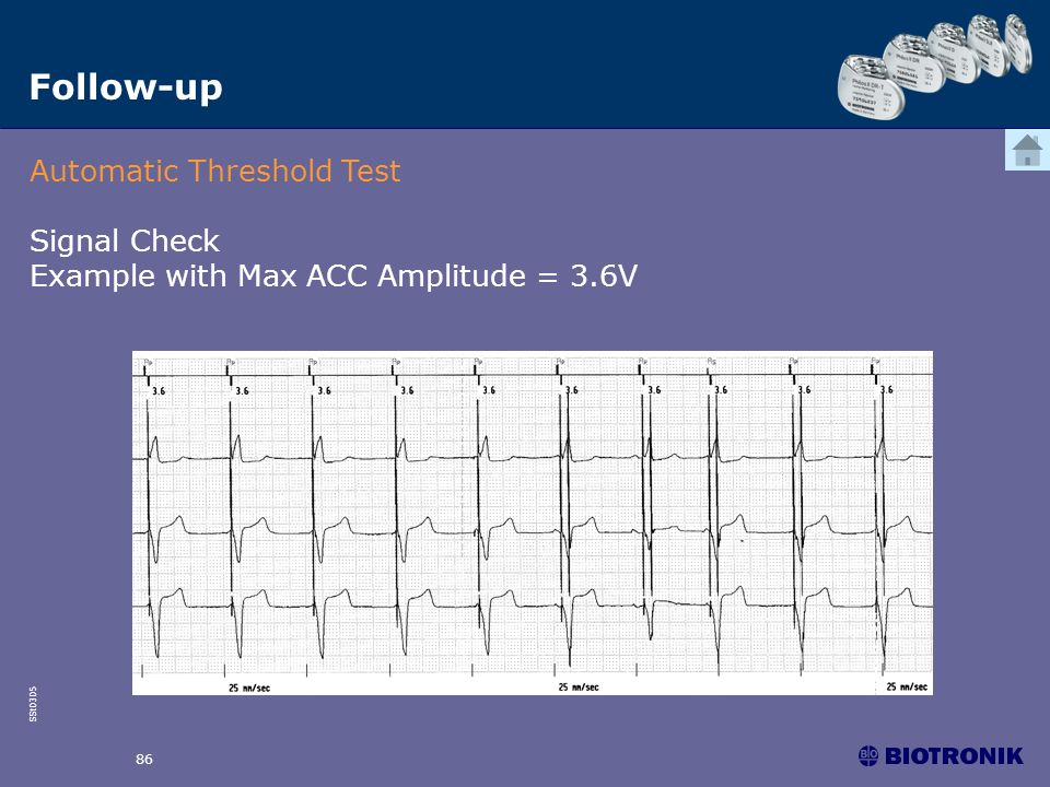 SSt0305 86 Follow-up Automatic Threshold Test Signal Check Example with Max ACC Amplitude = 3.6V