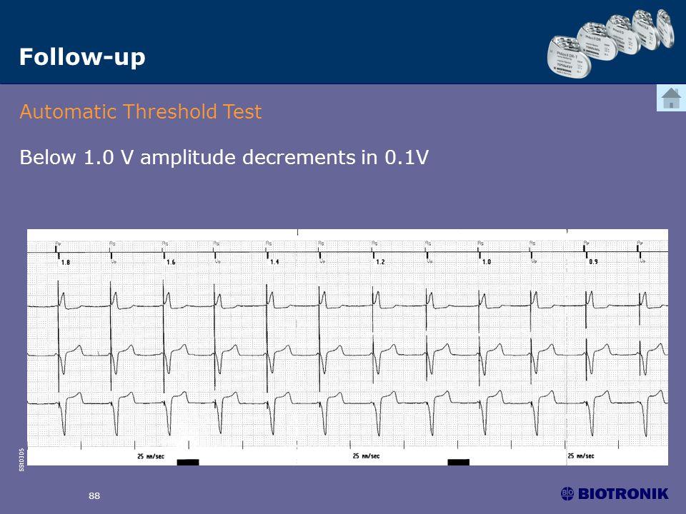 SSt0305 88 Follow-up Automatic Threshold Test Below 1.0 V amplitude decrements in 0.1V