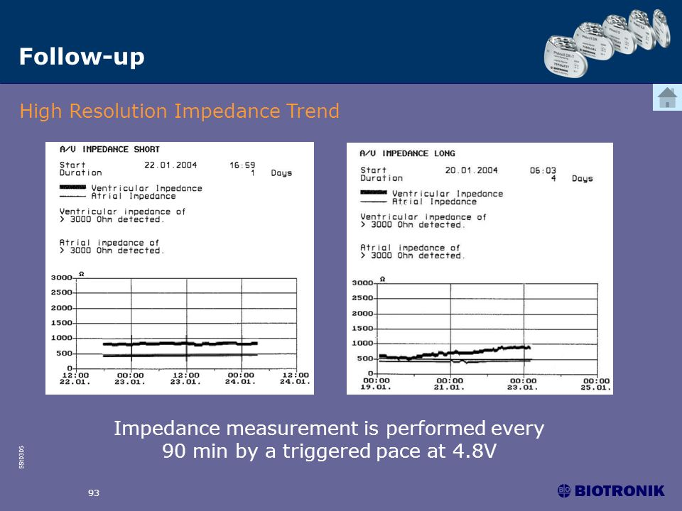 SSt0305 93 Follow-up High Resolution Impedance Trend Impedance measurement is performed every 90 min by a triggered pace at 4.8V