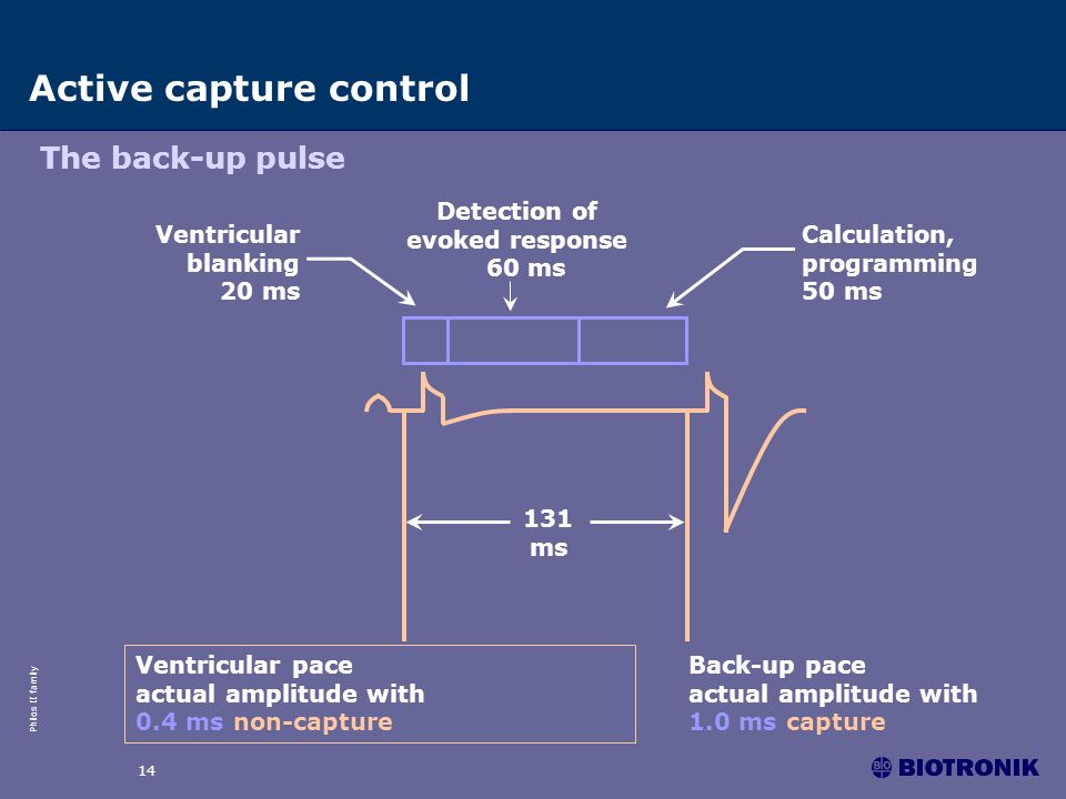 Philos II family 14 Active capture control The back-up pulse Ventricular pace actual amplitude with 0.4 ms non-capture Back-up pace actual amplitude w