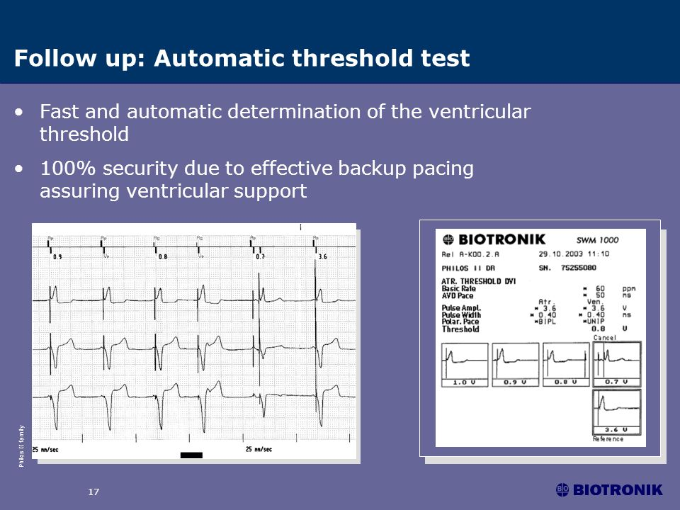 Philos II family 17 Follow up: Automatic threshold test Fast and automatic determination of the ventricular threshold 100% security due to effective b