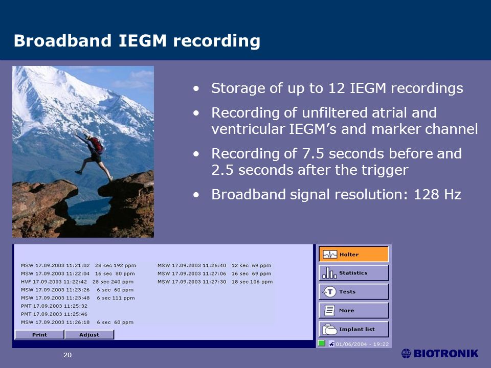 Philos II family 20 Broadband IEGM recording Storage of up to 12 IEGM recordings Recording of unfiltered atrial and ventricular IEGMs and marker chann