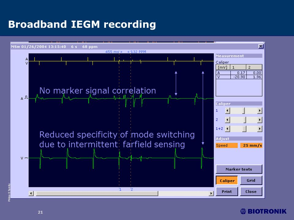 Philos II family 21 Broadband IEGM recording No marker signal correlation Reduced specificity of mode switching due to intermittent farfield sensing
