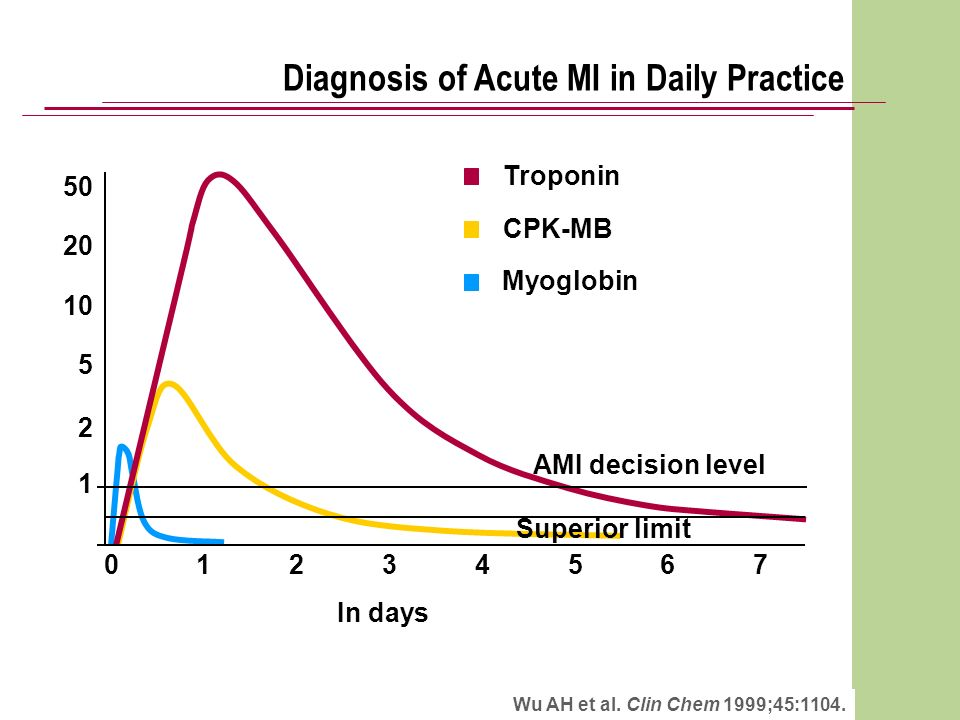 Wu AH et al. Clin Chem 1999;45:1104. In days AMI decision level Superior limit 1 2 5 10 20 50 Diagnosis of Acute MI in Daily Practice 01234567 Troponi