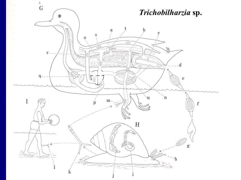 Trichobilharzia sp.