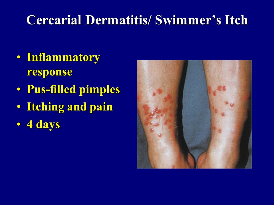 Cercarial Dermatitis/ Swimmers Itch Inflammatory responseInflammatory response Pus-filled pimplesPus-filled pimples Itching and painItching and pain 4
