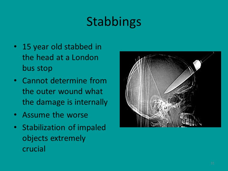 31 Stabbings 15 year old stabbed in the head at a London bus stop Cannot determine from the outer wound what the damage is internally Assume the worse